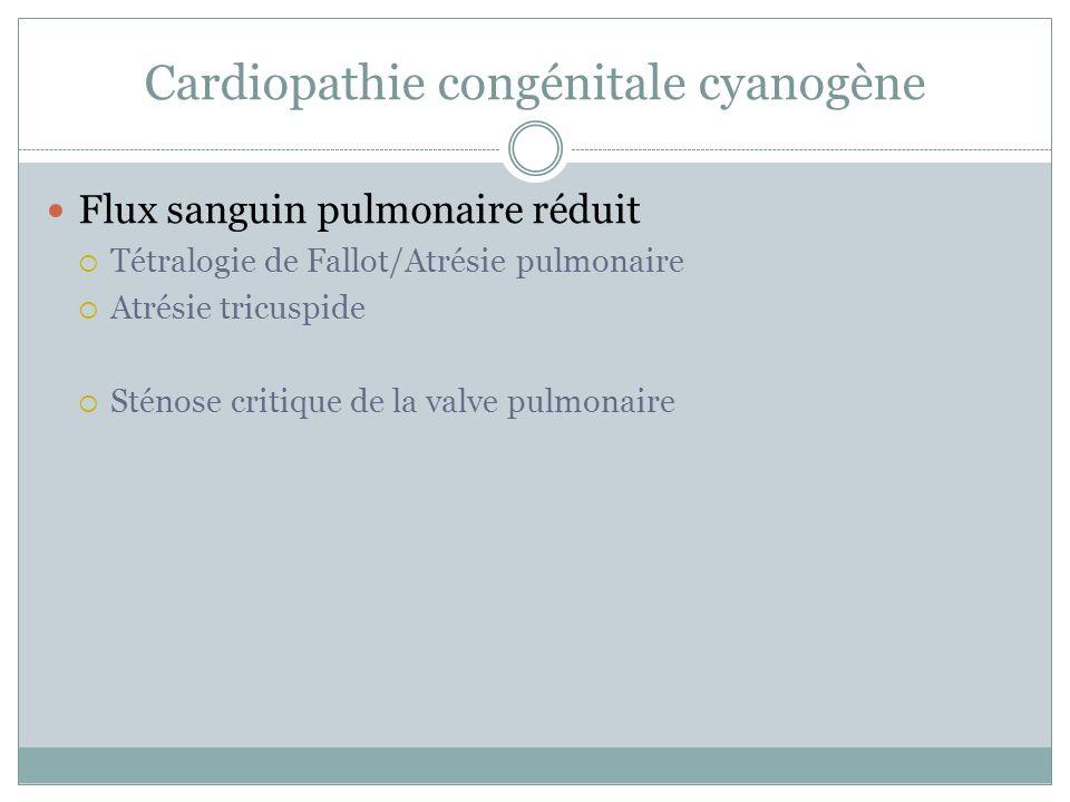 Cardiopathie congénitale cyanogène Flux sanguin pulmonaire réduit Tétralogie de Fallot/Atrésie pulmonaire Atrésie tricuspide Sténose critique de la valve pulmonaire