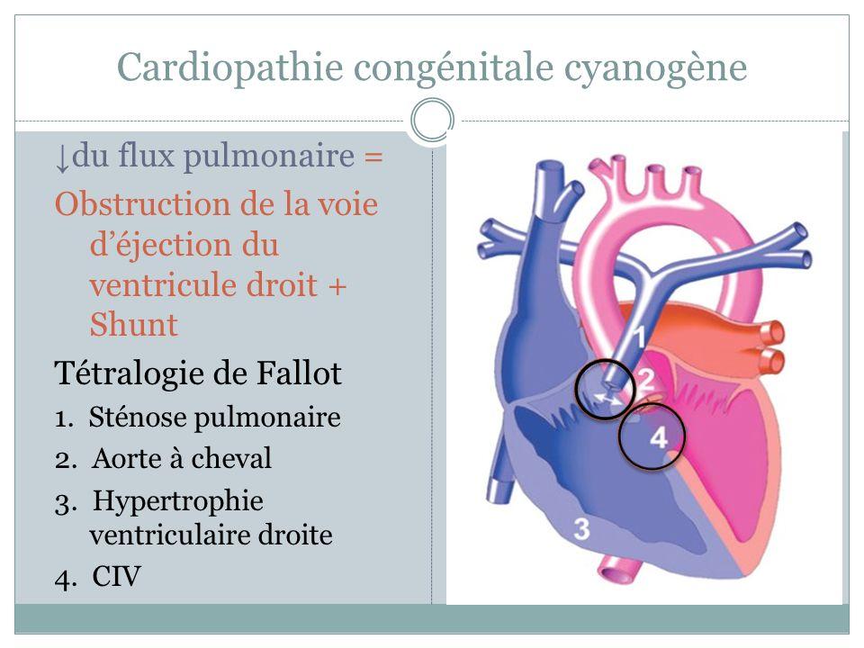 Cardiopathie congénitale cyanogène du flux pulmonaire = Obstruction de la voie déjection du ventricule droit + Shunt Tétralogie de Fallot 1.