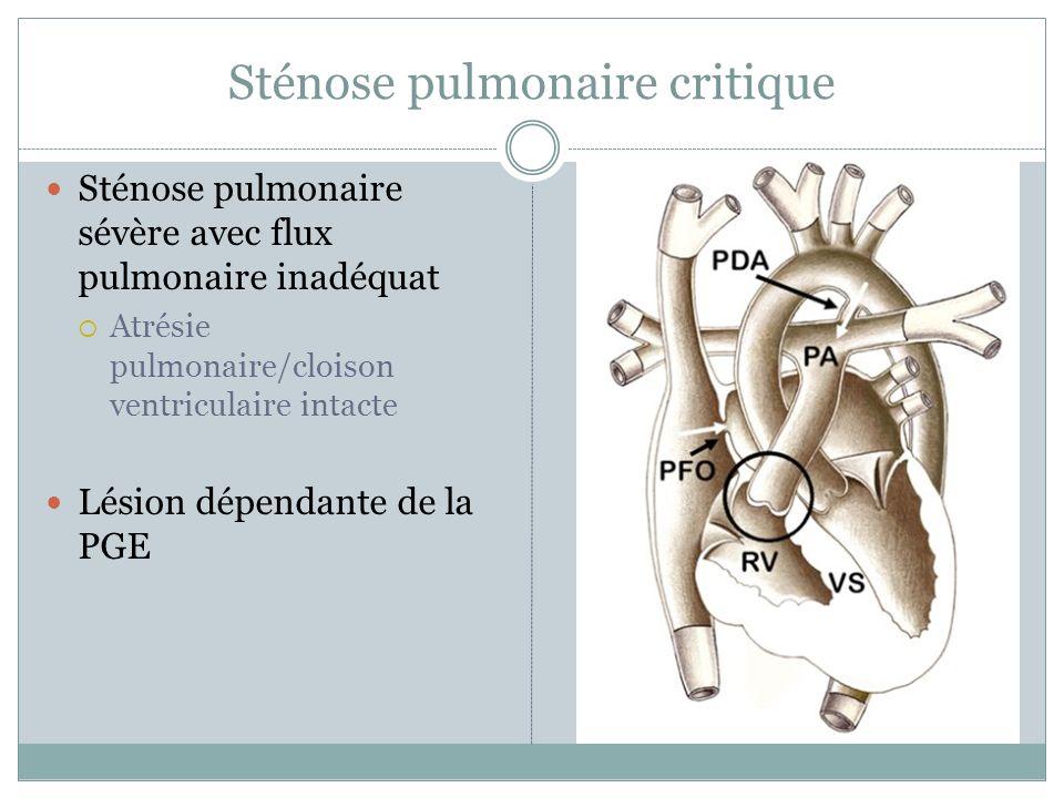Sténose pulmonaire critique Sténose pulmonaire sévère avec flux pulmonaire inadéquat Atrésie pulmonaire/cloison ventriculaire intacte Lésion dépendante de la PGE
