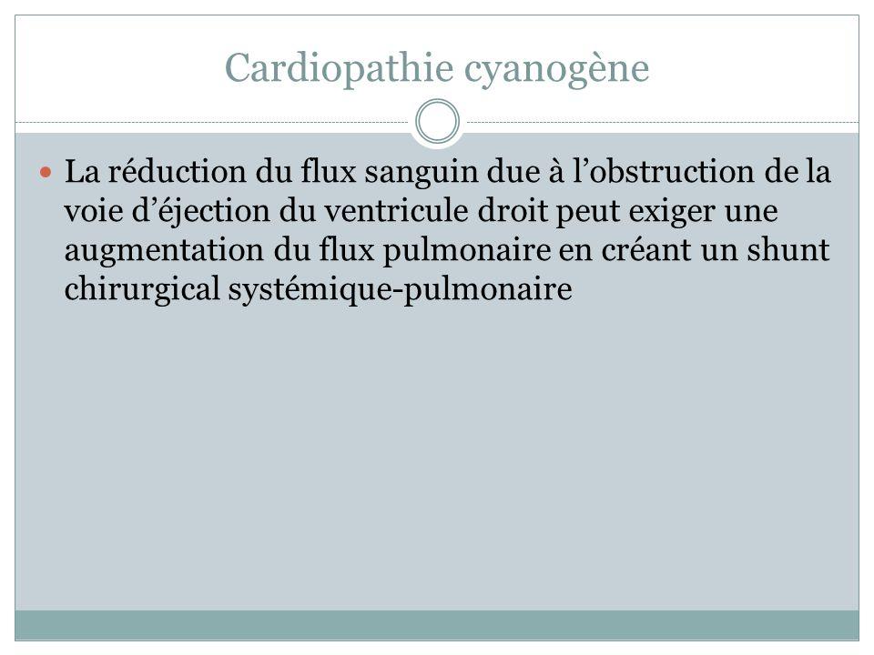 Cardiopathie cyanogène La réduction du flux sanguin due à lobstruction de la voie déjection du ventricule droit peut exiger une augmentation du flux pulmonaire en créant un shunt chirurgical systémique-pulmonaire