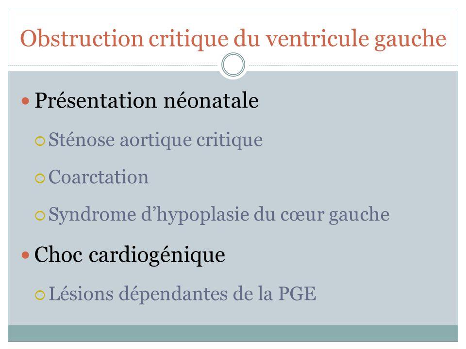 Obstruction critique du ventricule gauche Présentation néonatale Sténose aortique critique Coarctation Syndrome dhypoplasie du cœur gauche Choc cardiogénique Lésions dépendantes de la PGE