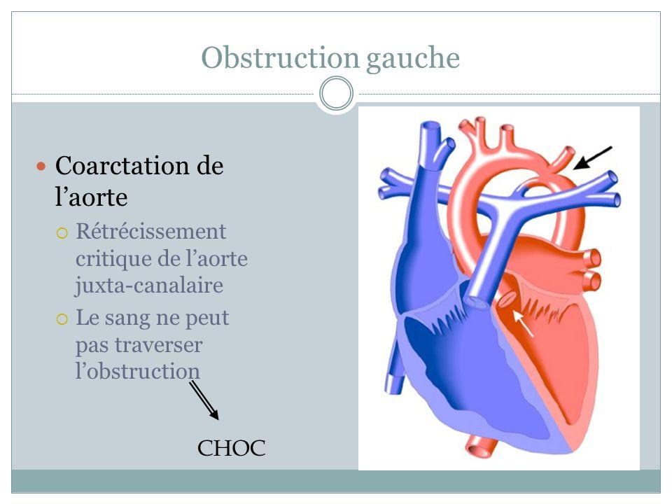 Obstruction gauche Coarctation de laorte Rétrécissement critique de laorte juxta-canalaire Le sang ne peut pas traverser lobstruction CHOC
