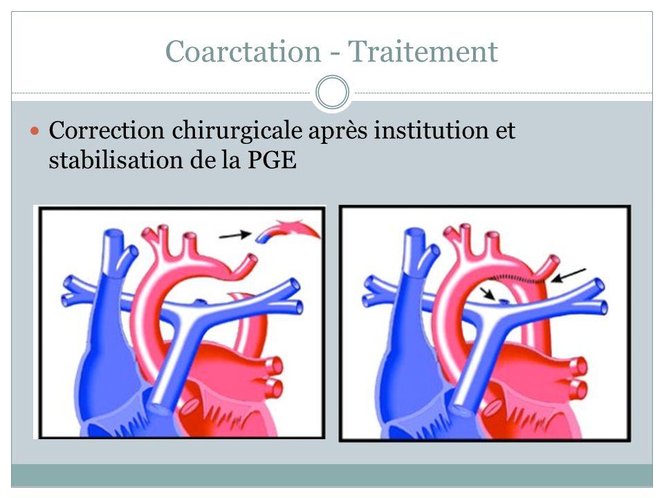 Coarctation - Traitement Correction chirurgicale après institution et stabilisation de la PGE