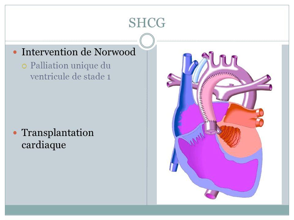 SHCG Intervention de Norwood Palliation unique du ventricule de stade 1 Transplantation cardiaque