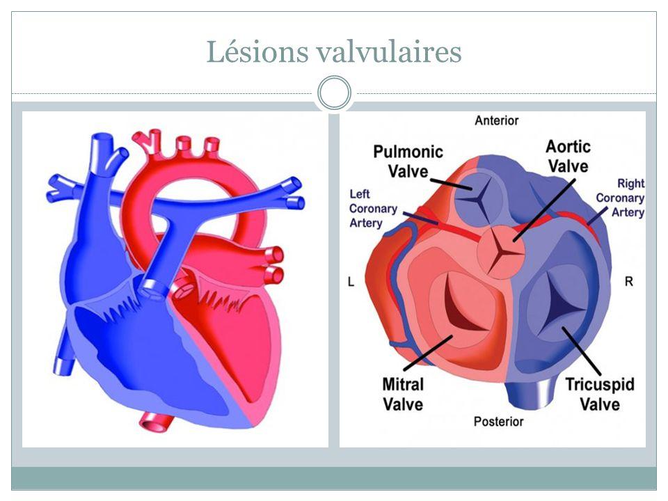 Atrésie pulmonaire/CIA Tétralogie de Fallot avec atrésie de la valve pulmonaire Anatomie variable de lartère pulmonaire Lésion généralement dépendante de la PGE