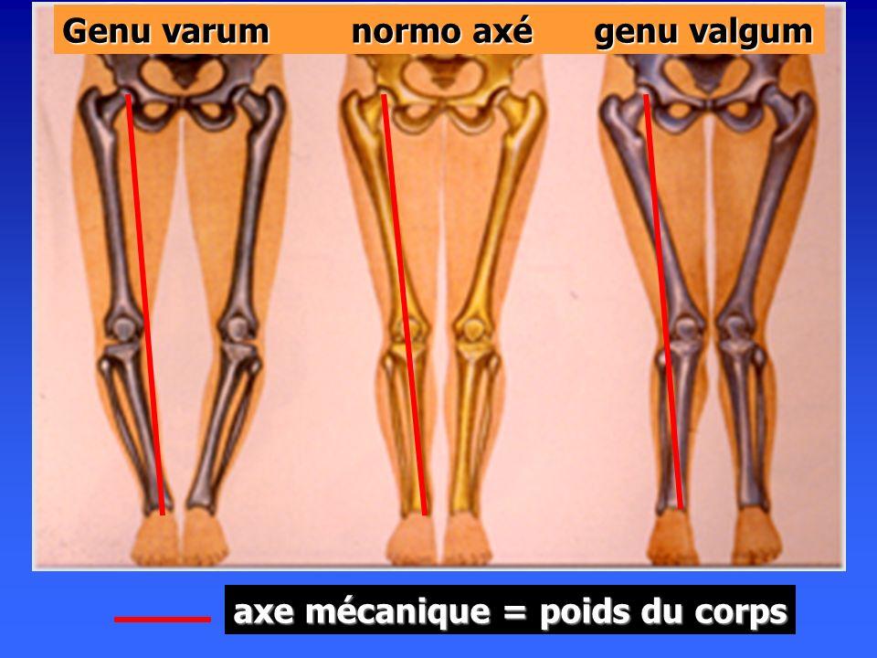 LA STABILISATION DYNAMIQUE Le peu de congruence des 3 articulations du genou et la nécessité dune mobilité contrôlée en particulier en flexion, imposent la présence dun système de stabilisation ligamentaire très développé pour Le peu de congruence des 3 articulations du genou et la nécessité dune mobilité contrôlée en particulier en flexion, imposent la présence dun système de stabilisation ligamentaire très développé pour le complexe fémoro-tibial le complexe fémoro-tibial larticulation fémoro-patellaire larticulation fémoro-patellaire