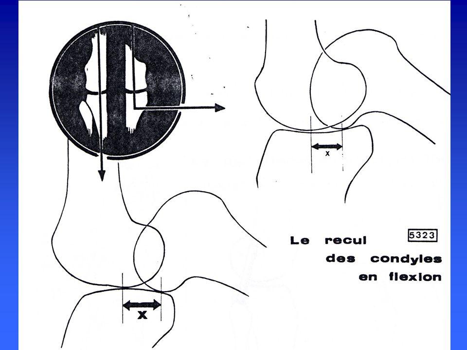 LA STABILISATION LIGAMENTAIRE la stabilisation des condyles en flexion- extension la stabilisation des condyles en flexion- extension est assurée par est assurée par les ligaments périphériques les ligaments périphériques les ligaments croisés les ligaments croisés est maximale en extension est maximale en extension
