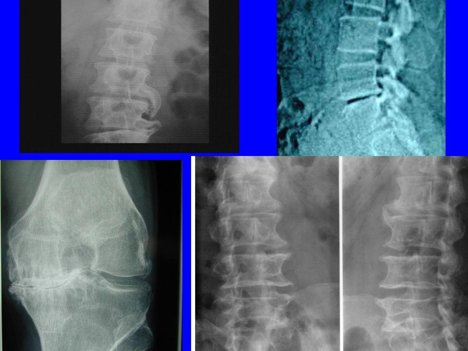 Destruction irréversible des cartilages, ligaments, os