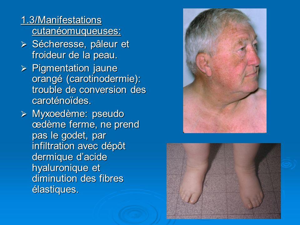 1.3/Manifestations cutanéomuqueuses: Sécheresse, pâleur et froideur de la peau. Sécheresse, pâleur et froideur de la peau. Pigmentation jaune orangé (