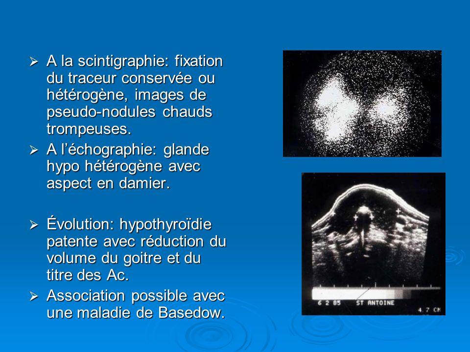 A la scintigraphie: fixation du traceur conservée ou hétérogène, images de pseudo-nodules chauds trompeuses. A la scintigraphie: fixation du traceur c