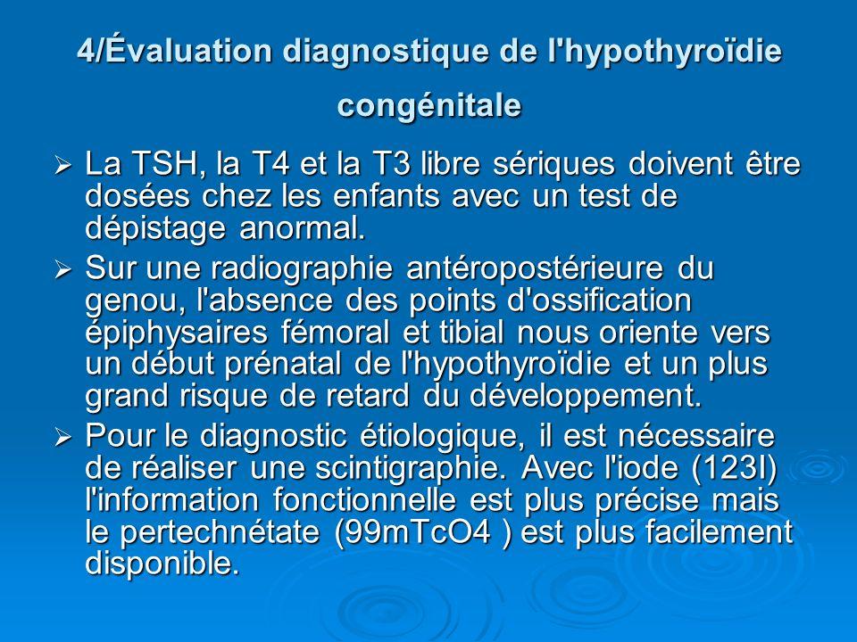 4/Évaluation diagnostique de l'hypothyroïdie congénitale La TSH, la T4 et la T3 libre sériques doivent être dosées chez les enfants avec un test de dé