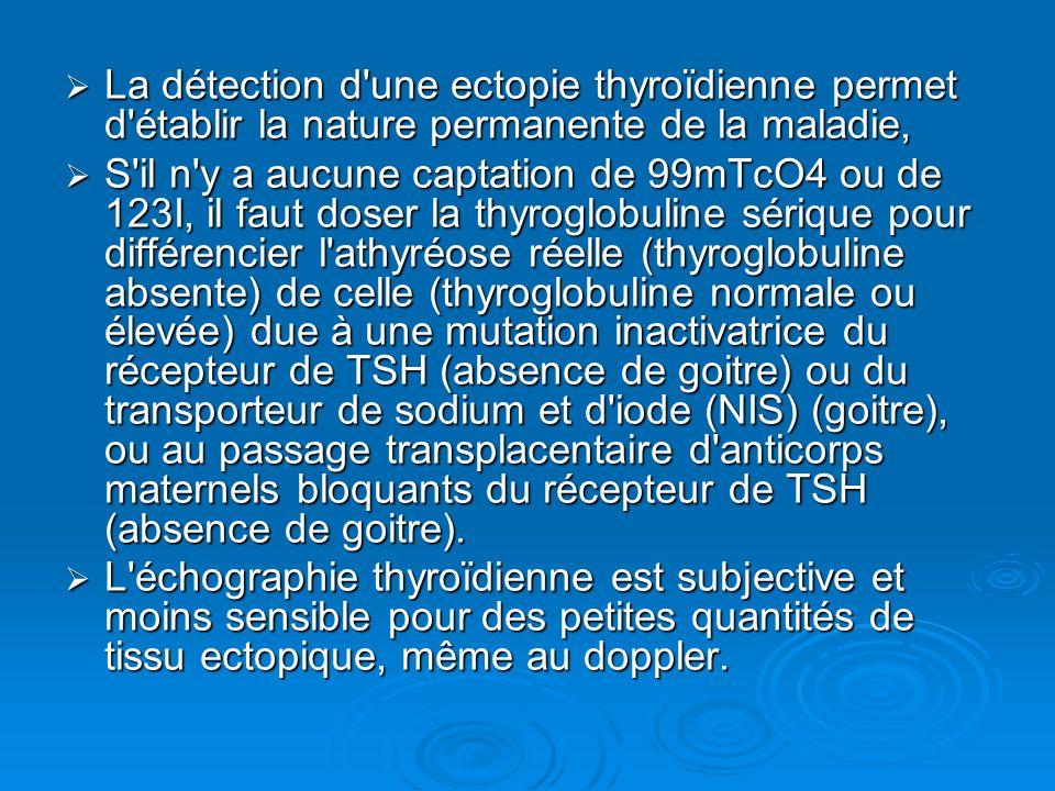 La détection d'une ectopie thyroïdienne permet d'établir la nature permanente de la maladie, La détection d'une ectopie thyroïdienne permet d'établir