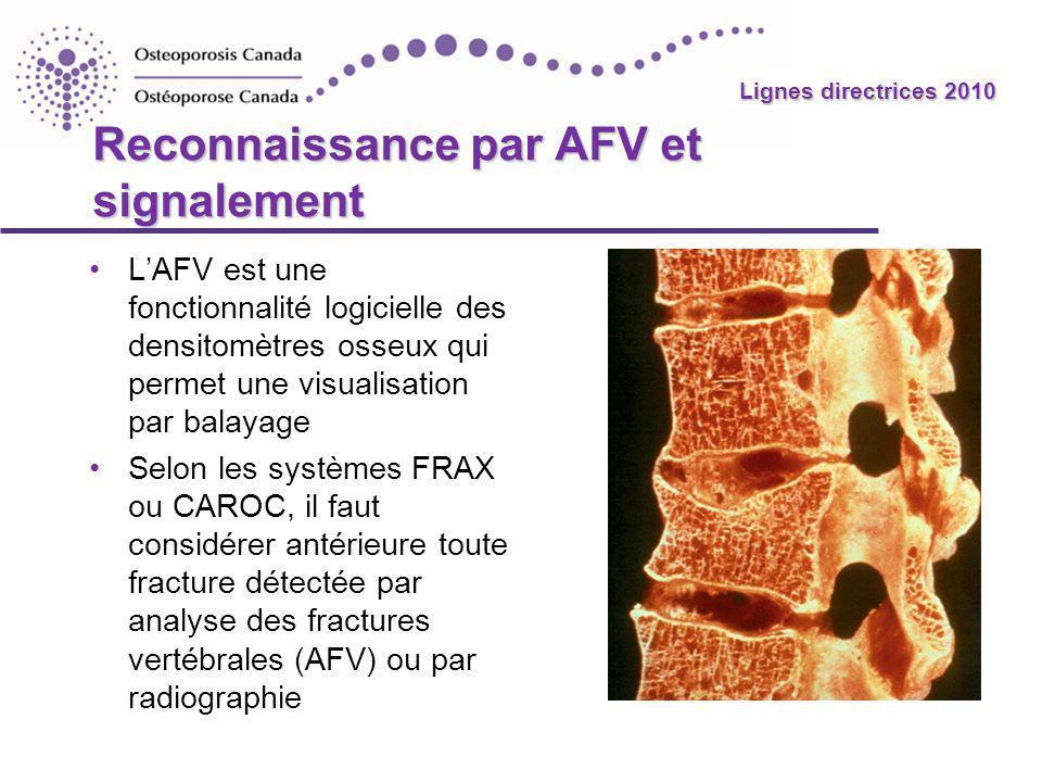 Lignes directrices 2010 Reconnaissance par AFV et signalement LAFV est une fonctionnalité logicielle des densitomètres osseux qui permet une visualisa