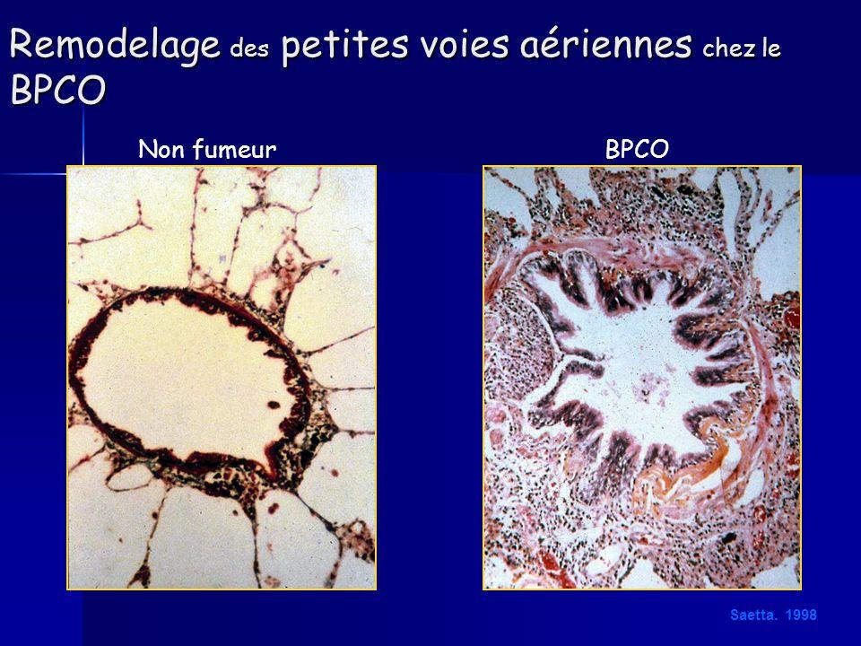 Remodelage des petites voies aériennes chez le BPCO Non fumeurBPCO Saetta. 1998