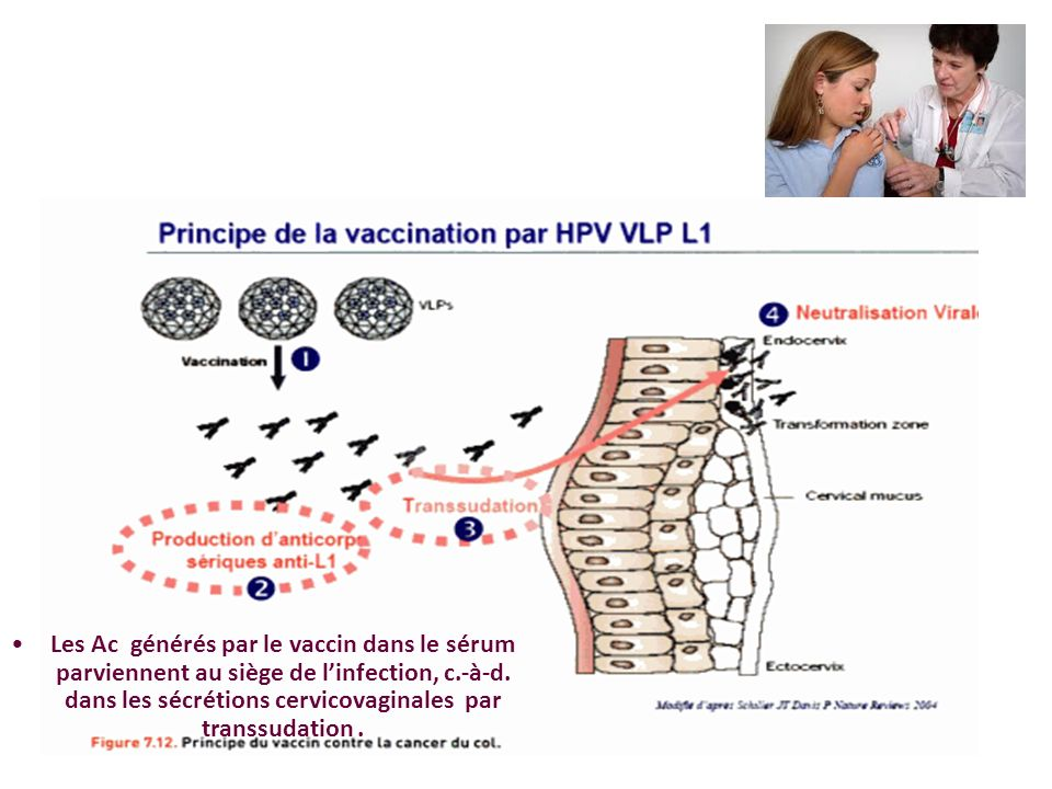 Les Ac générés par le vaccin dans le sérum parviennent au siège de linfection, c.-à-d. dans les sécrétions cervicovaginales par transsudation.