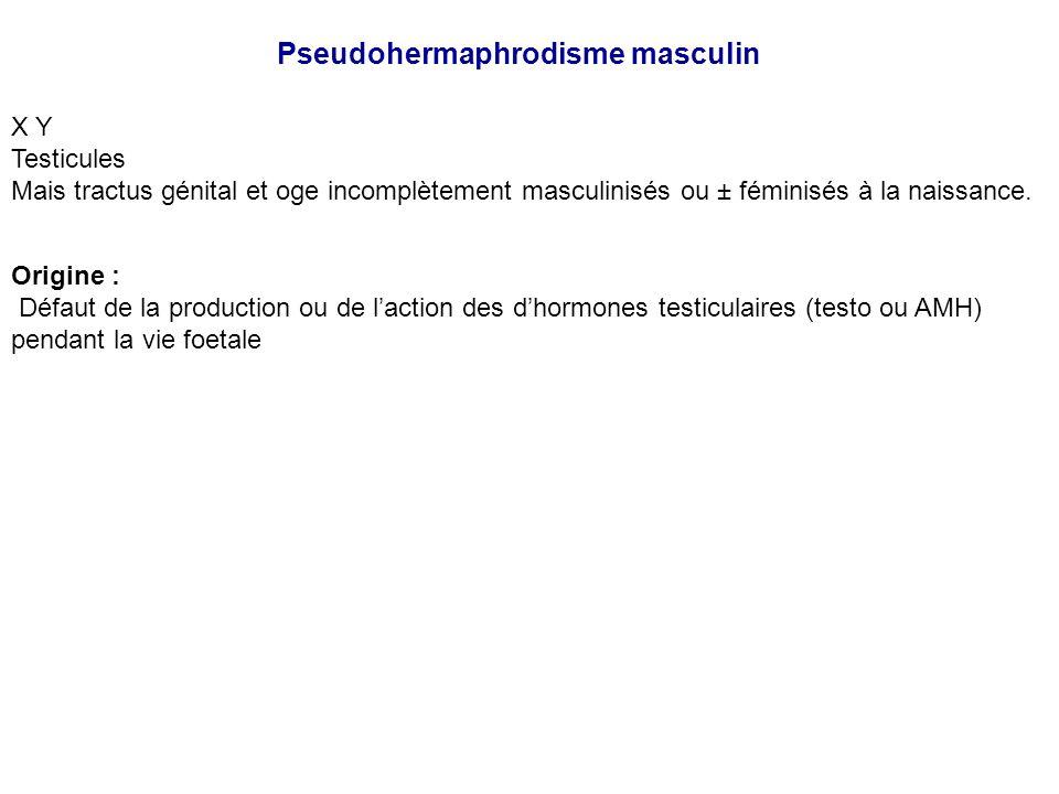 Pseudohermaphrodisme masculin X Y Testicules Mais tractus génital et oge incomplètement masculinisés ou ± féminisés à la naissance. Origine : Défaut d