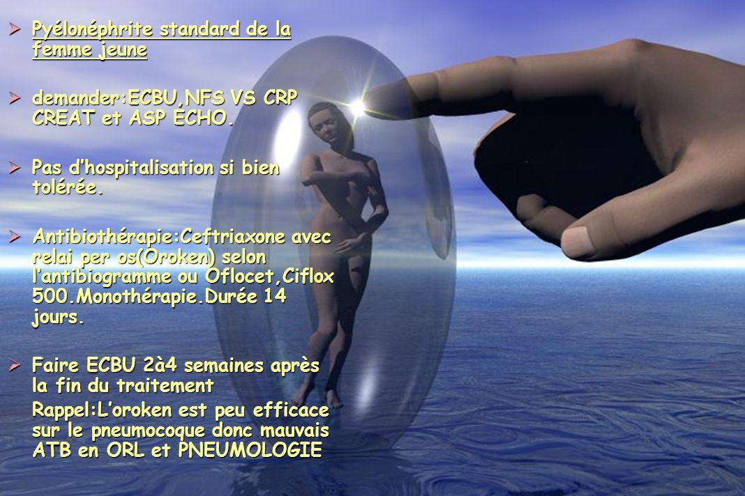 Pyélonéphrite standard de la femme jeune Pyélonéphrite standard de la femme jeune demander:ECBU,NFS VS CRP CREAT et ASP ECHO. demander:ECBU,NFS VS CRP