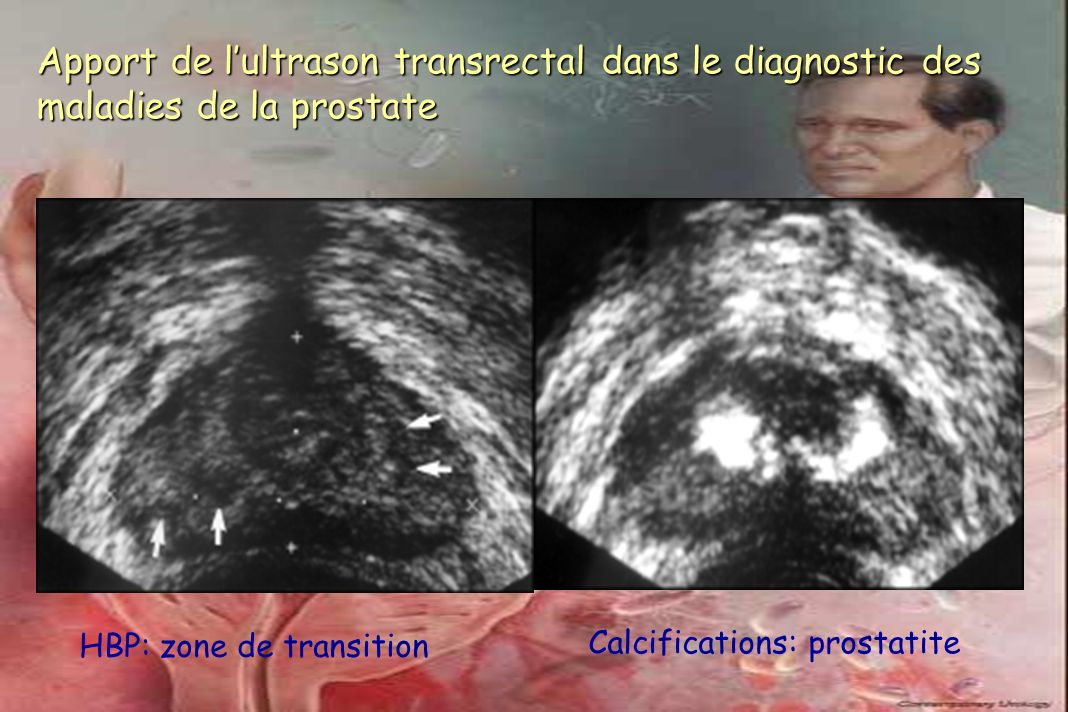 Apport de lultrason transrectal dans le diagnostic des maladies de la prostate HBP: zone de transition Calcifications: prostatite