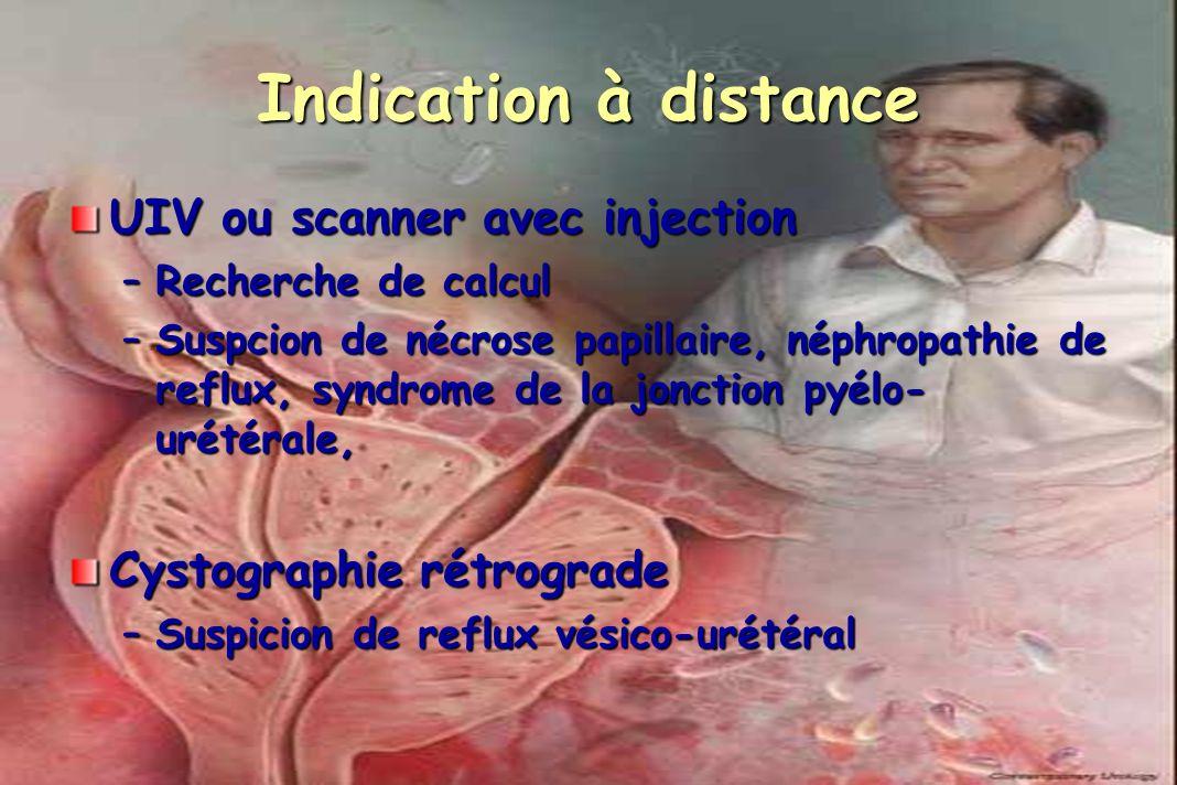 Indication à distance UIV ou scanner avec injection –Recherche de calcul –Suspcion de nécrose papillaire, néphropathie de reflux, syndrome de la jonct