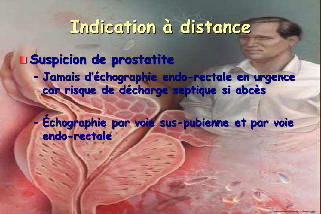 Indication à distance Suspicion de prostatite –Jamais déchographie endo-rectale en urgence car risque de décharge septique si abcès –Échographie par v