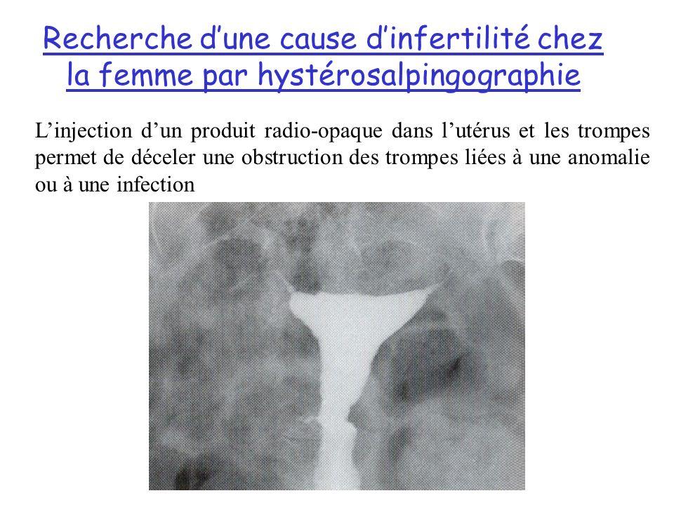 Recherche dune cause dinfertilité chez la femme par hystérosalpingographie Linjection dun produit radio-opaque dans lutérus et les trompes permet de déceler une obstruction des trompes liées à une anomalie ou à une infection
