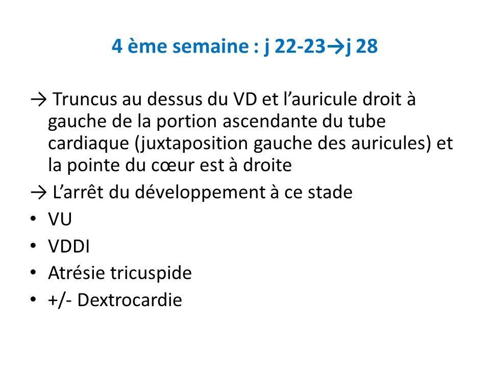 4 ème semaine : j 22-23j 28 Truncus au dessus du VD et lauricule droit à gauche de la portion ascendante du tube cardiaque (juxtaposition gauche des auricules) et la pointe du cœur est à droite Larrêt du développement à ce stade VU VDDI Atrésie tricuspide +/- Dextrocardie