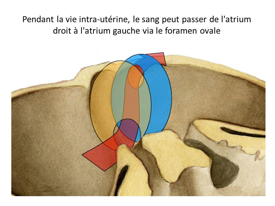 Pendant la vie intra-utérine, le sang peut passer de l atrium droit à l atrium gauche via le foramen ovale