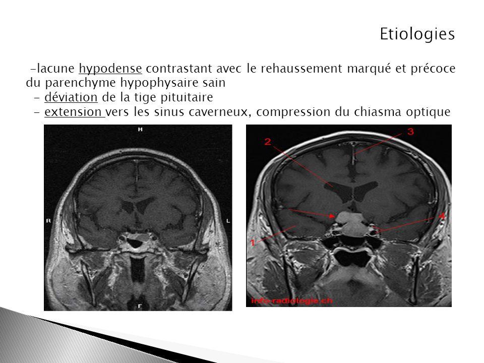 -lacune hypodense contrastant avec le rehaussement marqué et précoce du parenchyme hypophysaire sain - déviation de la tige pituitaire - extension ver