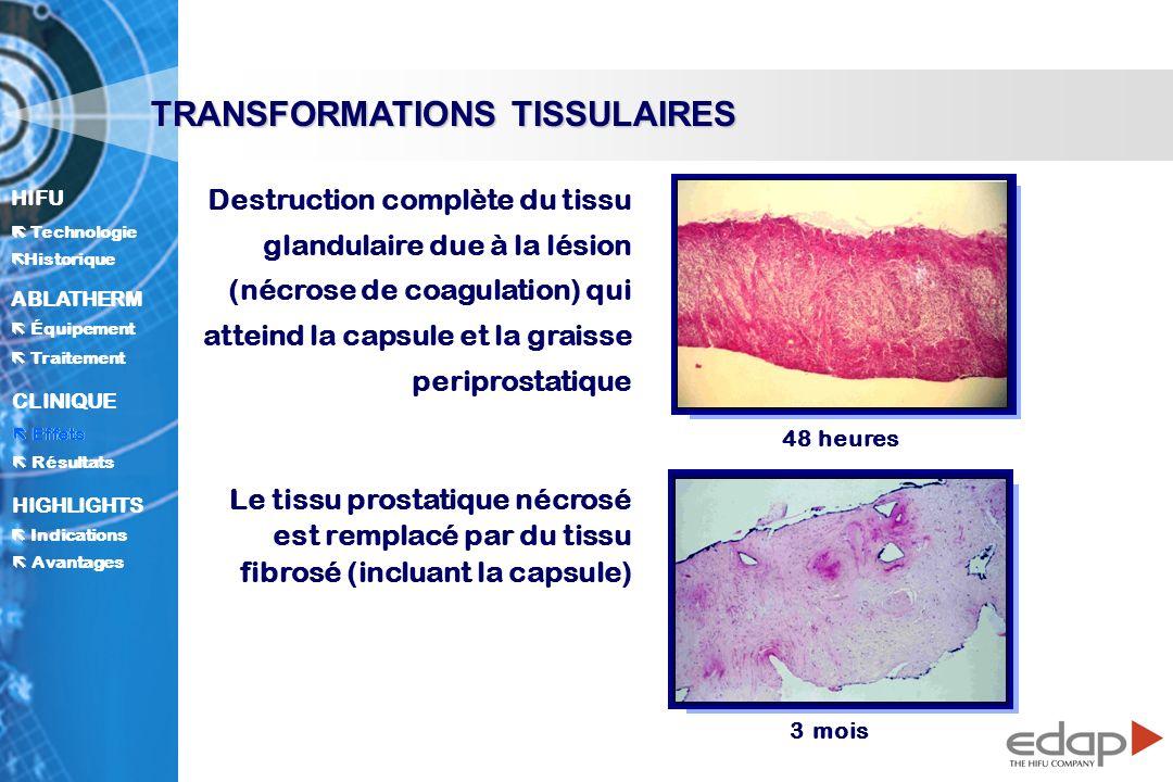 HIFU ë Historique Historique Technologie ABLATHERM Traitement Équipement Avantages CLINIQUE Effets Résultats Indications HIGHLIGHTS TRANSFORMATIONS TISSULAIRES Destruction complète du tissu glandulaire due à la lésion (nécrose de coagulation) qui atteind la capsule et la graisse periprostatique Le tissu prostatique nécrosé est remplacé par du tissu fibrosé (incluant la capsule) 48 heures 3 mois Effets