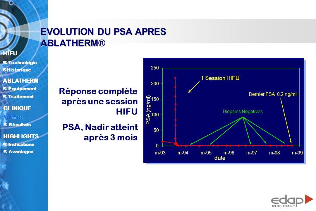 HIFU ë Historique Historique Technologie ABLATHERM Traitement Équipement Avantages CLINIQUE Effets Résultats Indications HIGHLIGHTS EVOLUTION DU PSA APRES ABLATHERM EVOLUTION DU PSA APRES ABLATHERM® 0 50 100 150 200 250 m-93m-94m-95m-96m-97m-98m-99 date 1 Session HIFU Dernier PSA 0.2 ng/ml Biopsies Négatives Réponse complète après une session HIFU PSA, Nadir atteint après 3 mois PSA (ng/ml) Effets