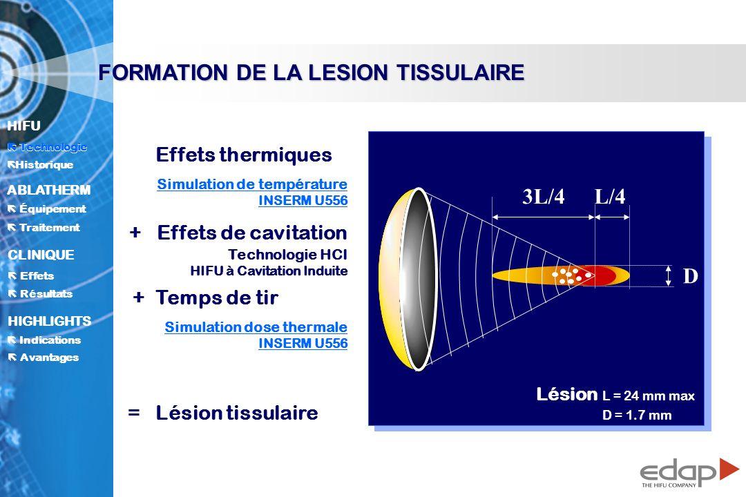 HIFU ë Historique Historique Technologie ABLATHERM Traitement Équipement Avantages CLINIQUE Effets Résultats Indications HIGHLIGHTS FORMATION DE LA LESION TISSULAIRE 3L/4L/4 D Effets thermiques Simulation de température INSERM U556 +Effets de cavitation Technologie HCI HIFU à Cavitation Induite + Temps de tir Simulation dose thermale INSERM U556 = Lésion tissulaire Technologie Lésion L = 24 mm max D = 1.7 mm