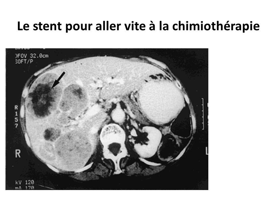 Le stent pour aller vite à la chimiothérapie