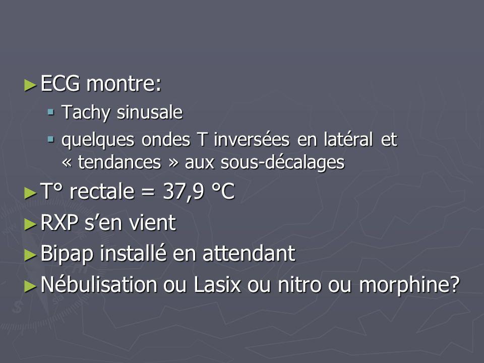 ECG montre: ECG montre: Tachy sinusale Tachy sinusale quelques ondes T inversées en latéral et « tendances » aux sous-décalages quelques ondes T inver
