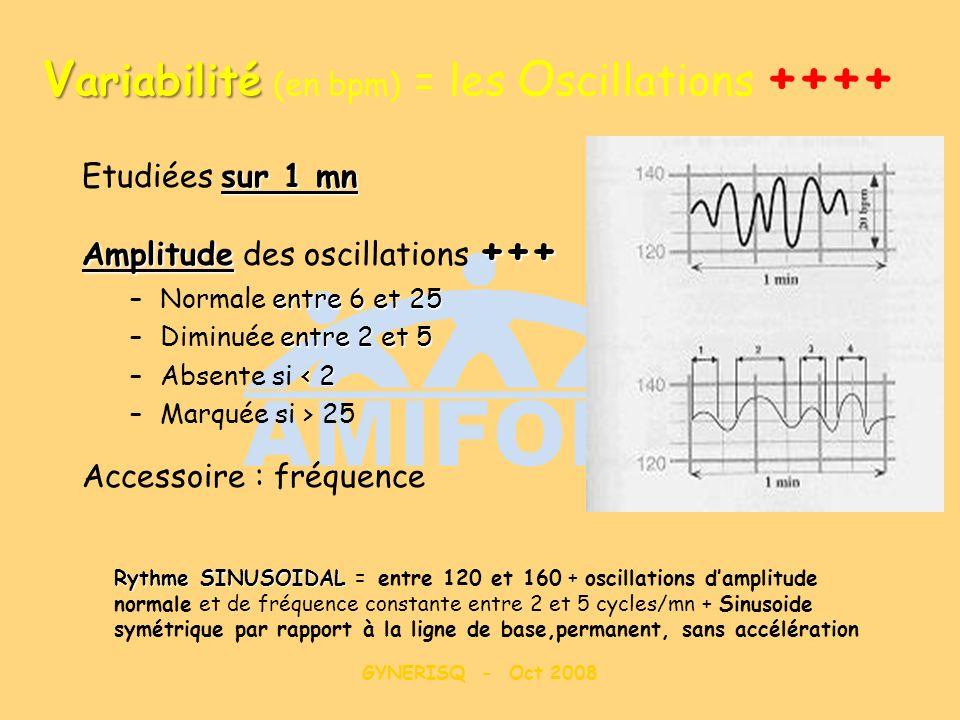 GYNERISQ - Oct 2008 V ariabilité V ariabilité (en bpm) = les O scillations ++++ sur 1 mn Etudiées sur 1 mn Amplitude +++ Amplitude des oscillations ++