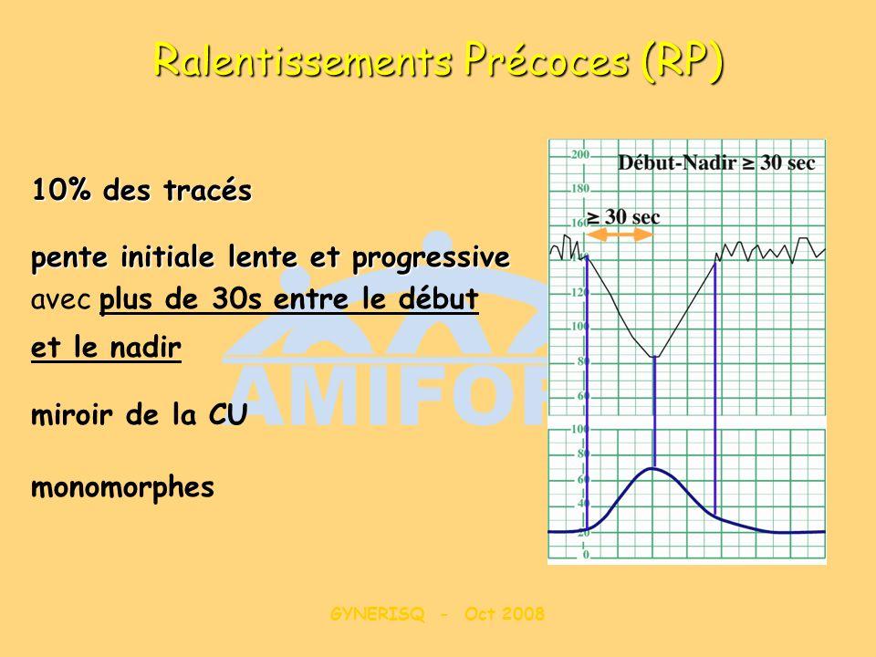 GYNERISQ - Oct 2008 R alentissements P récoces (RP) 10% des tracés pente initiale lente et progressive avec plus de 30s entre le début et le nadir mir