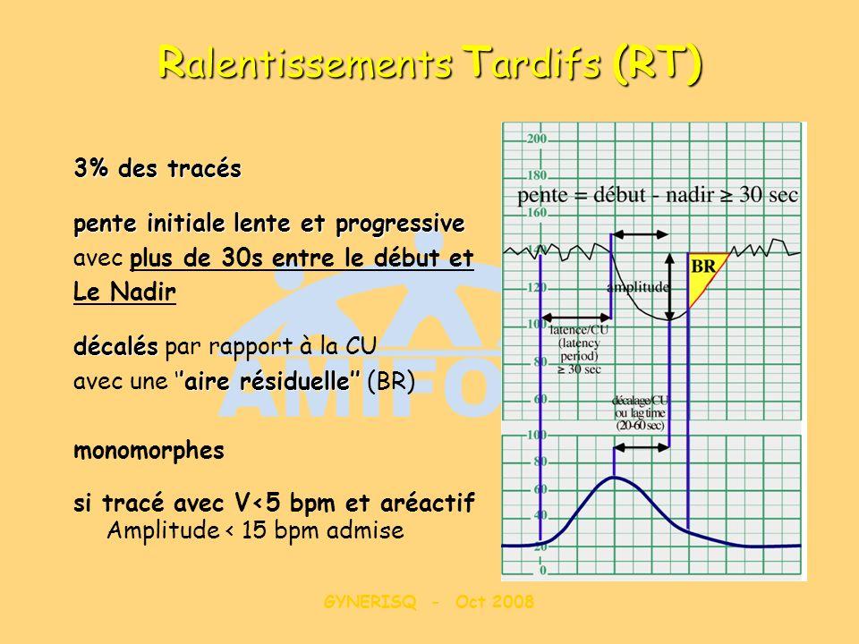 GYNERISQ - Oct 2008 R alentissements T ardifs (RT) 3% des tracés pente initiale lente et progressive avec plus de 30s entre le début et Le Nadir décal