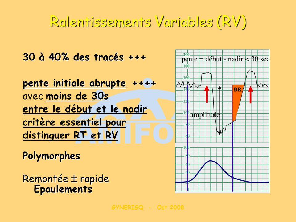 GYNERISQ - Oct 2008 R alentissements V ariables (RV) 30 à 40% des tracés +++ pente initiale abrupte++++ pente initiale abrupte ++++ avec moins de 30s