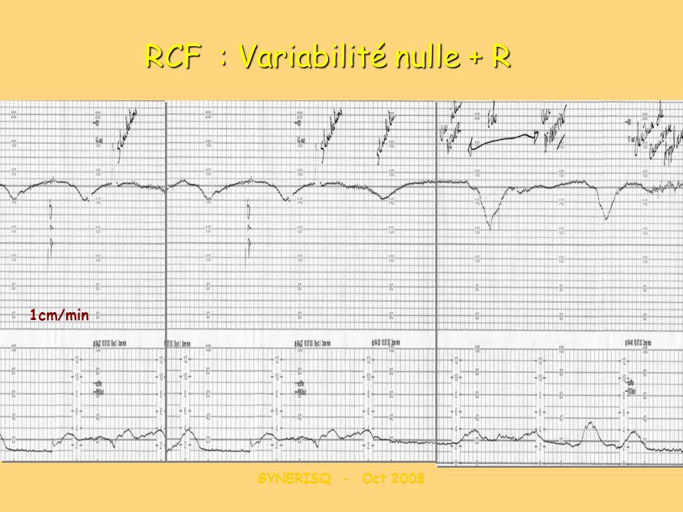 GYNERISQ - Oct 2008 RCF : Variabilité nulle + R 1cm/min