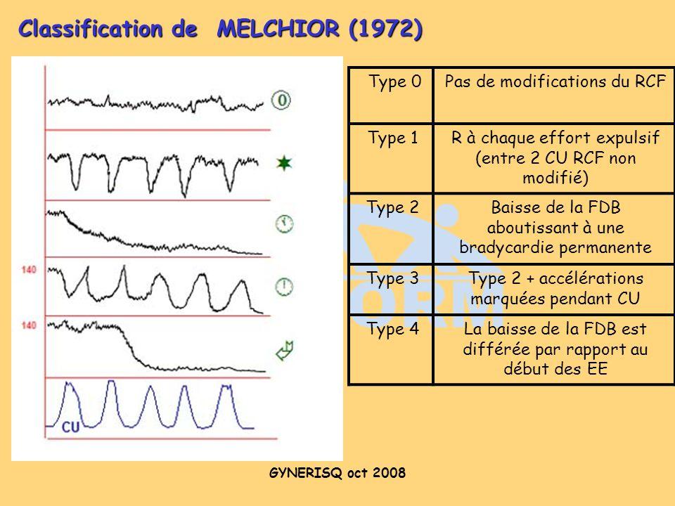 GYNERISQ oct 2008 Type 0Pas de modifications du RCF Type 1R à chaque effort expulsif (entre 2 CU RCF non modifié) Type 2Baisse de la FDB aboutissant à