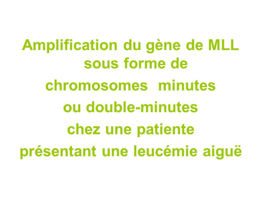 Amplification du gène de MLL sous forme de chromosomes minutes ou double-minutes chez une patiente présentant une leucémie aiguë