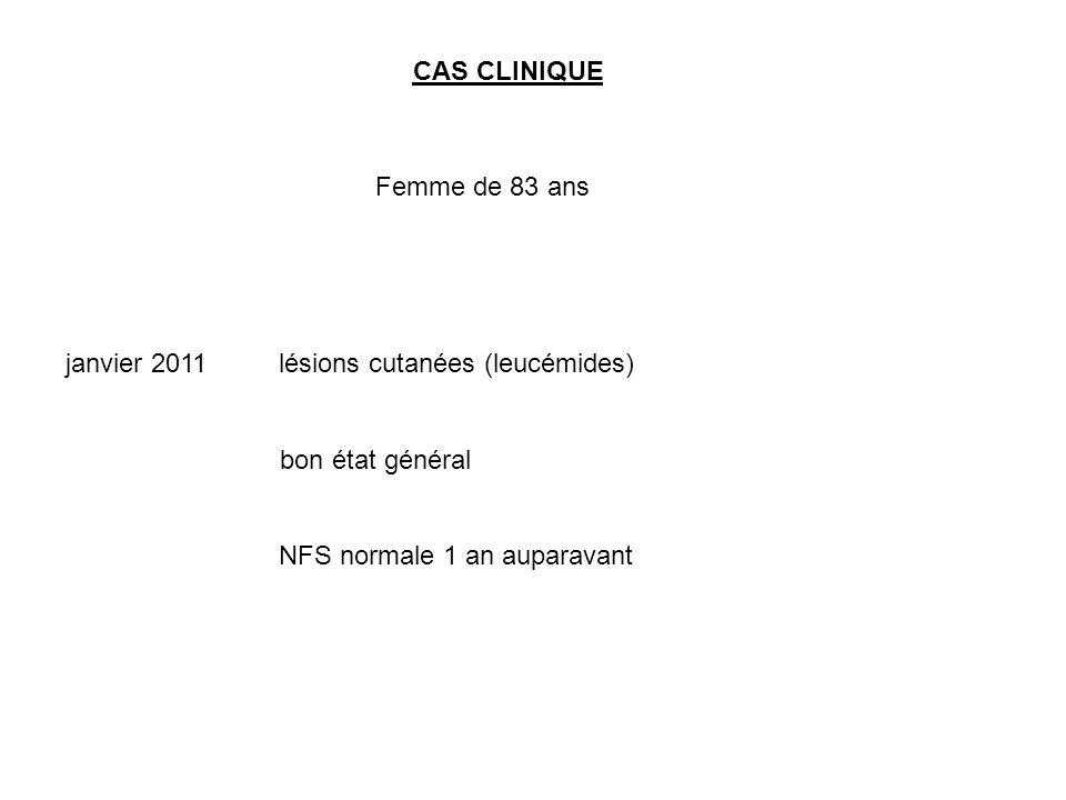 CAS CLINIQUE Femme de 83 ans janvier 2011 lésions cutanées (leucémides) bon état général NFS normale 1 an auparavant