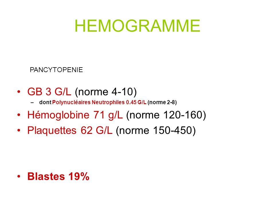 HEMOGRAMME GB 3 G/L (norme 4-10) –dont Polynucléaires Neutrophiles 0.45 G/L (norme 2-8) Hémoglobine 71 g/L (norme 120-160) Plaquettes 62 G/L (norme 150-450) Blastes 19% PANCYTOPENIE