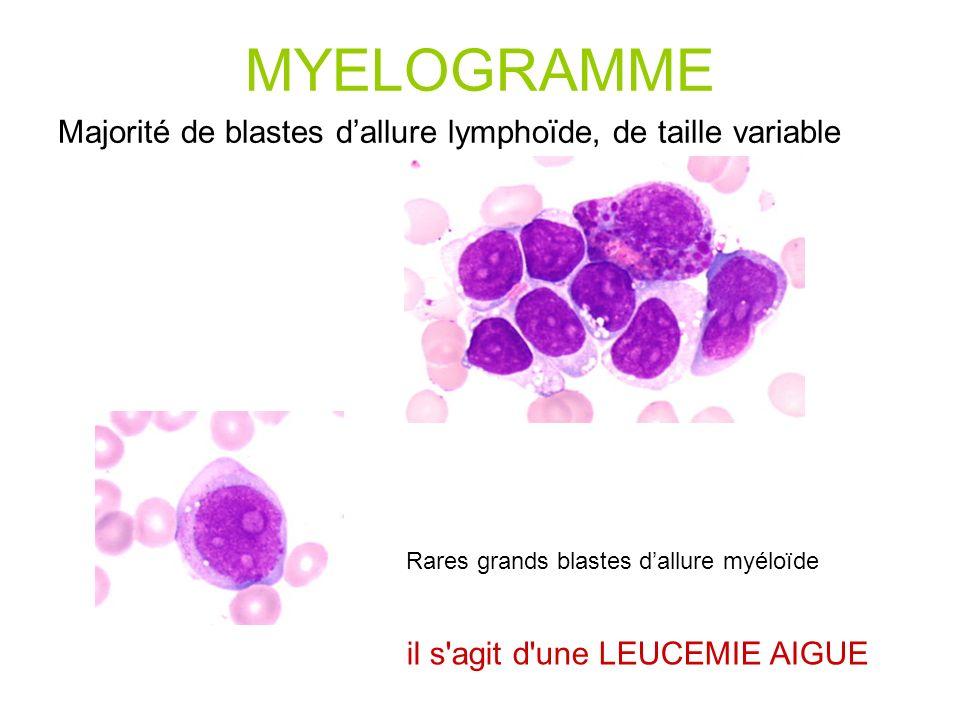 MYELOGRAMME Majorité de blastes dallure lymphoïde, de taille variable Rares grands blastes dallure myéloïde il s agit d une LEUCEMIE AIGUE