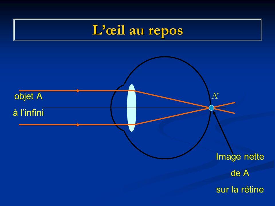 Accommodation de lœil pour obtenir une image nette Image nette de A Objet A proche de lœil AA Position de limage nette de A Objet A proche de lœil A A Cristallin ayant modifié sa courbure Image floue de A sur la rétine