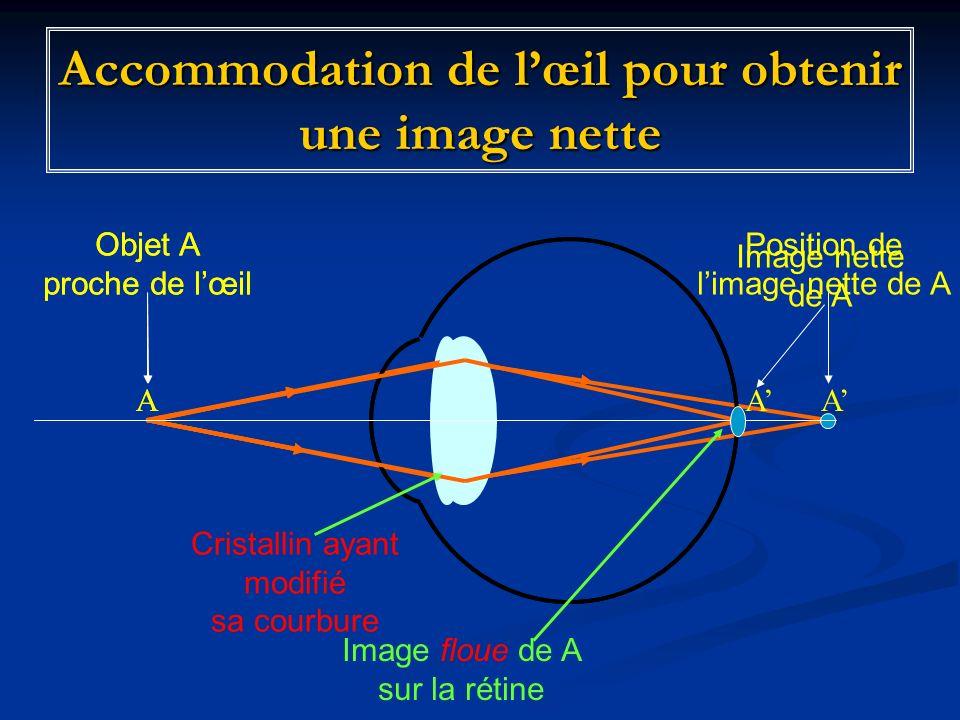 Accommodation de lœil pour obtenir une image nette Image nette de A Objet A proche de lœil AA Position de limage nette de A Objet A proche de lœil A A