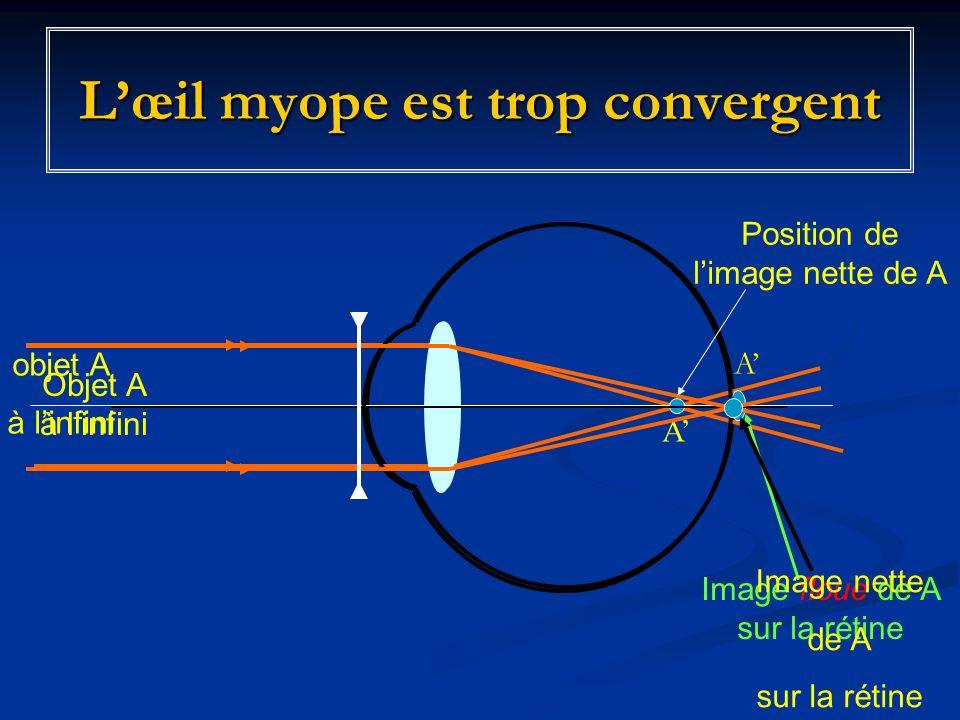 Lœil myope est trop convergent Objet A à linfini A Image floue de A sur la rétine objet A à linfini Image nette de A sur la rétine A Position de limage nette de A