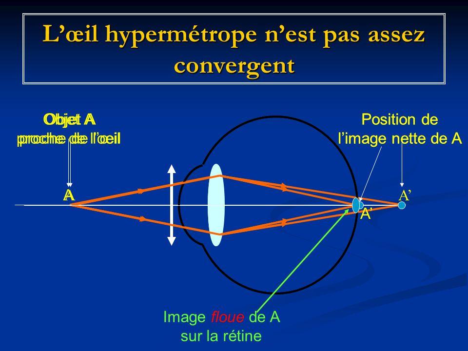 Lœil hypermétrope nest pas assez convergent Objet A proche de lœil AA Position de limage nette de A Objet A proche de loeil A A Position de limage nette de A Image floue de A sur la rétine