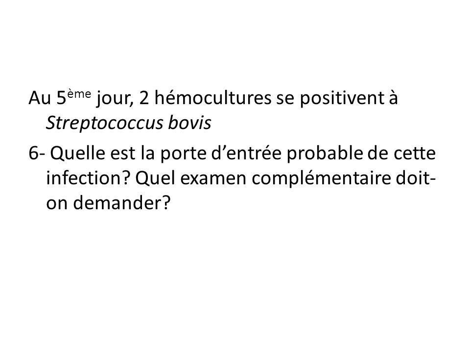Au 5 ème jour, 2 hémocultures se positivent à Streptococcus bovis 6- Quelle est la porte dentrée probable de cette infection? Quel examen complémentai