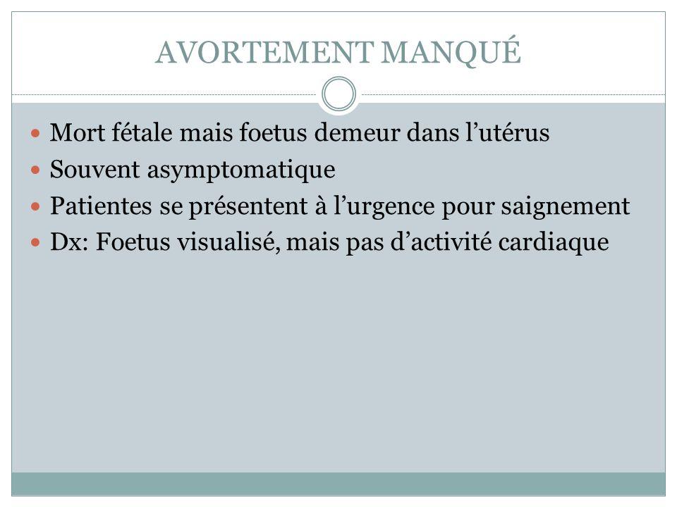 AVORTEMENT MANQUÉ Mort fétale mais foetus demeur dans lutérus Souvent asymptomatique Patientes se présentent à lurgence pour saignement Dx: Foetus visualisé, mais pas dactivité cardiaque