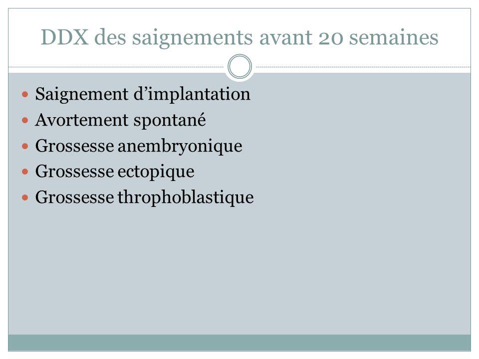DDX des saignements avant 20 semaines Saignement dimplantation Avortement spontané Grossesse anembryonique Grossesse ectopique Grossesse throphoblastique